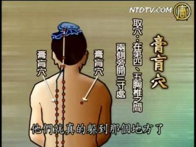 【認識中醫】名醫故事-醫和 / 胃痛
