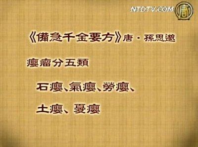 談古論今話中醫 (13):甲狀腺腫大