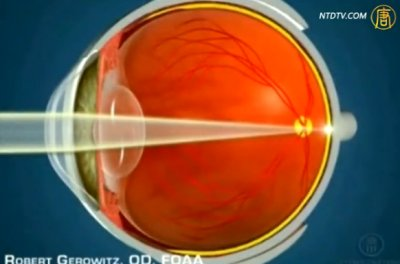 生活百分百:高登角膜塑形視力矯正