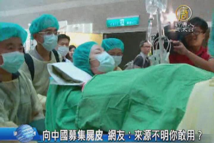 向中國募集屍皮 網友:來源不明你敢用?